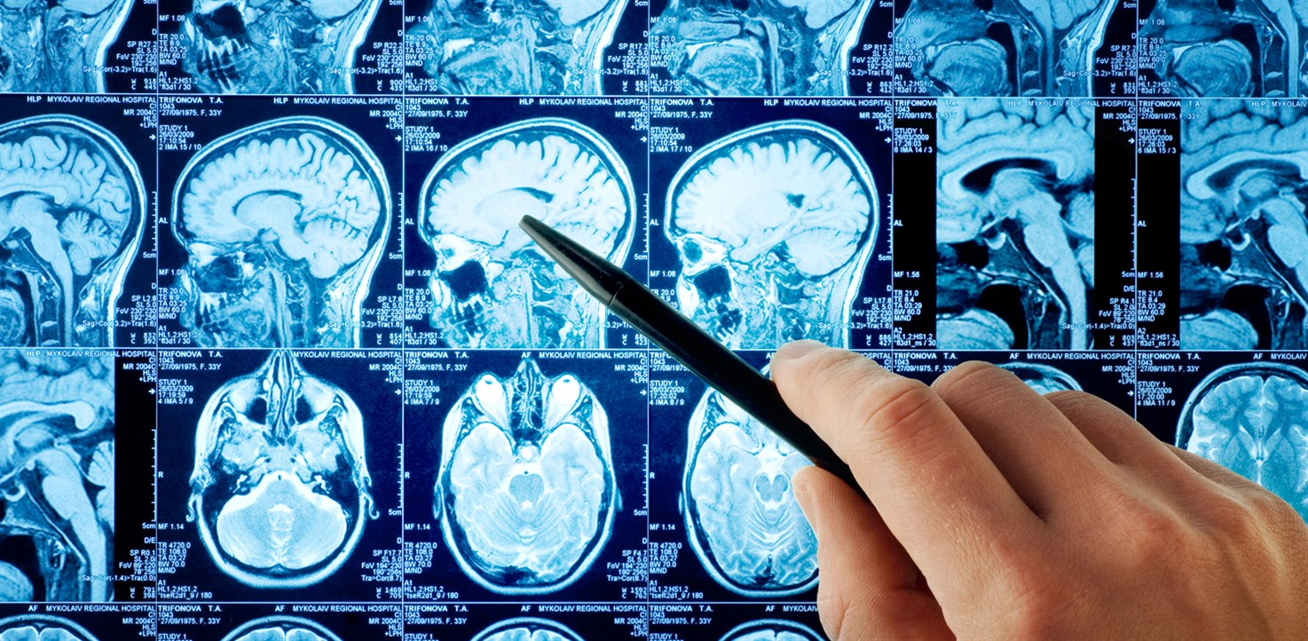We Need More Neurologists: A Summary of the American Academy of Neurology Workforce Report